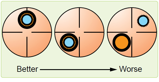Figure 13-3. Correct and incorrect collimation.